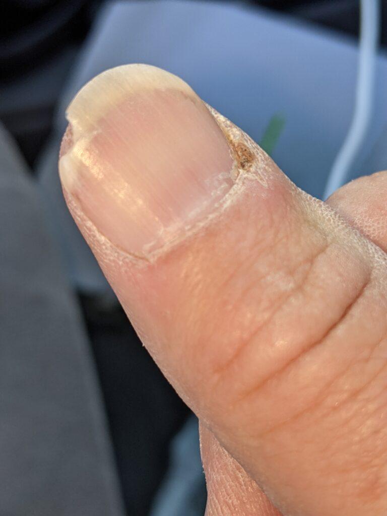 I broke a nail.